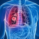 Рак легких симпотомы лечение
