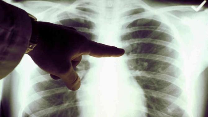 Опухоли легких - признаки и симпотомы