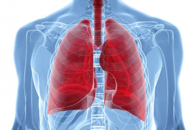 Рак легких и его симпотомы