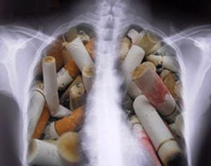 Рак легкого и курение