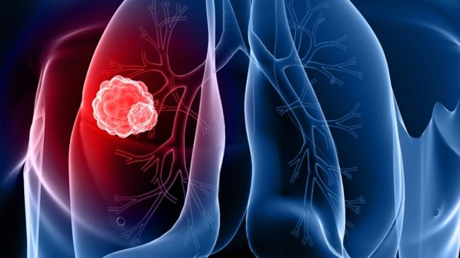 Симпотомы опухоли легкого