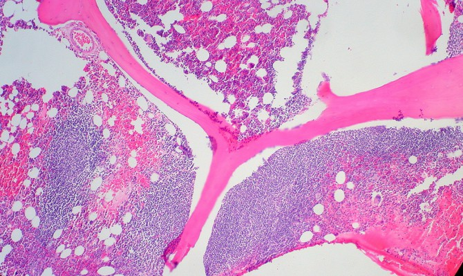 Фолликулярная лимфома в костном мозге
