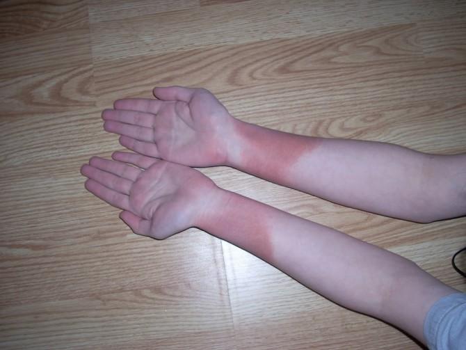 Опухоль руки