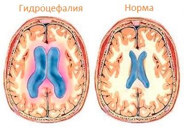 Опухоль эпифиза