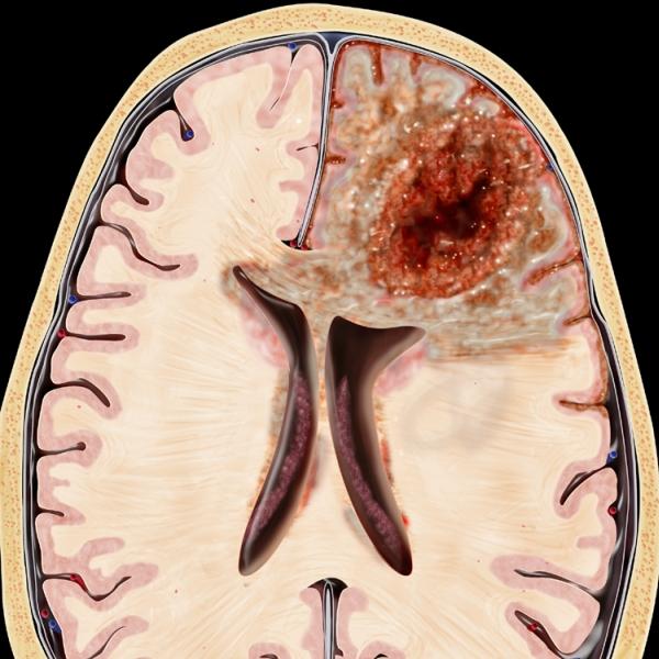 от чего бывает отек мозга чтобы повредить