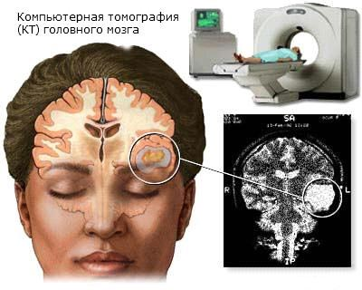 Опухоль головного мозга .Сколько с ней живут?
