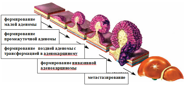 Классификация полипов прямой кишки