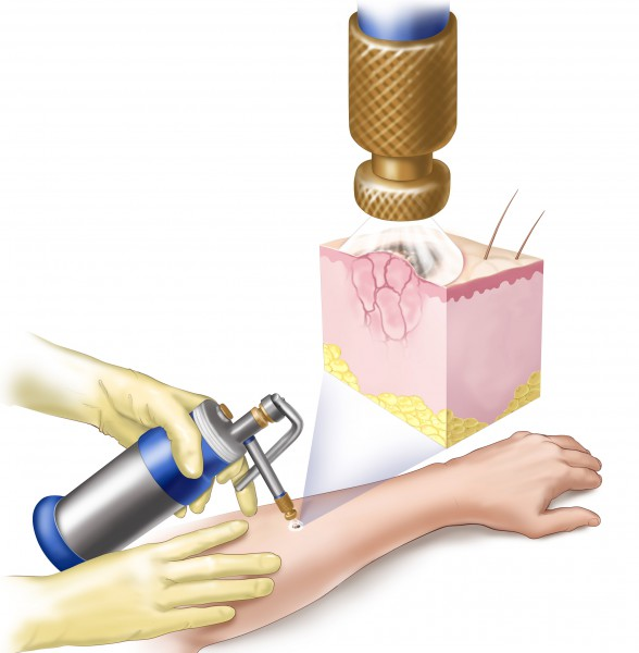 Лечение рака руки