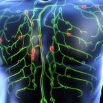 Лимфома 4 стадия
