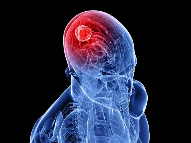 Лимфома головного мозга - симптомы и прогнозы