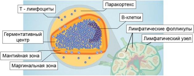 Лимфома из клеток мантийной зоны