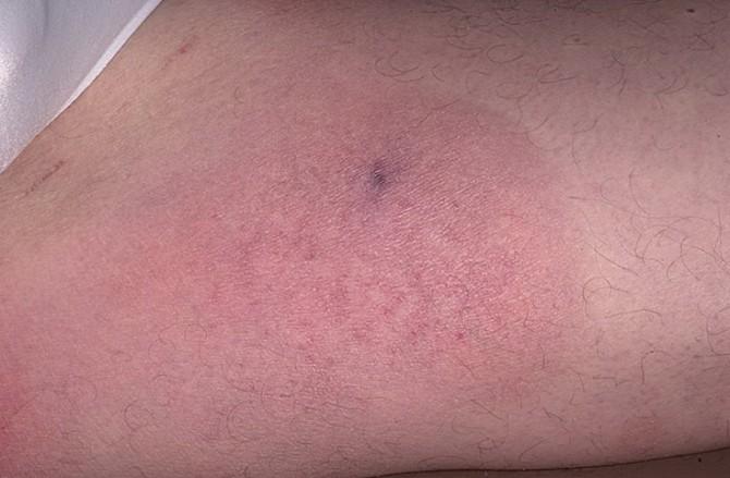 Лимфома кожи Т-клеточная