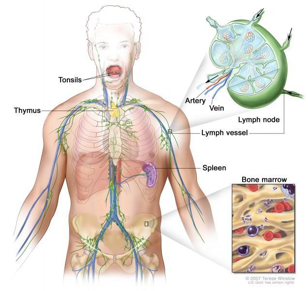 Лимфома селезенки