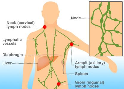 Локализация b-клеточной лимфомы