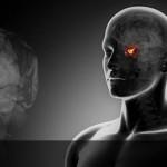 Опухоль гипофиза