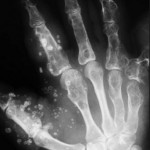 Опухоль пальцев рук