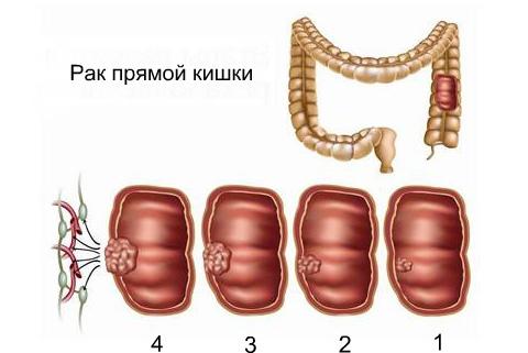 Рак прямой кишки - стадии