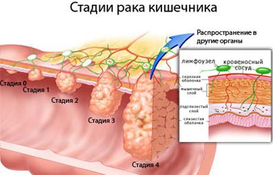 рак кишки