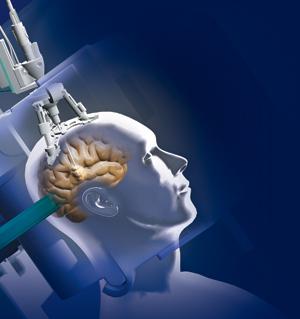 лечение рака мозга