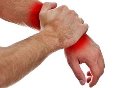 Симптомы гигромы запястья