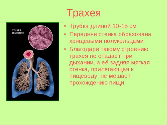 Опухоль трахеи