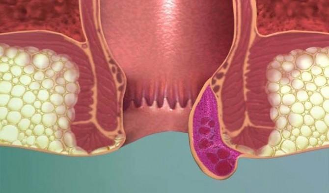 Пятно вокруг ануса признак анального секса