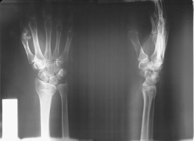 Запястья Рентген
