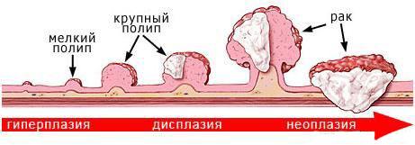 Опухоль кишки