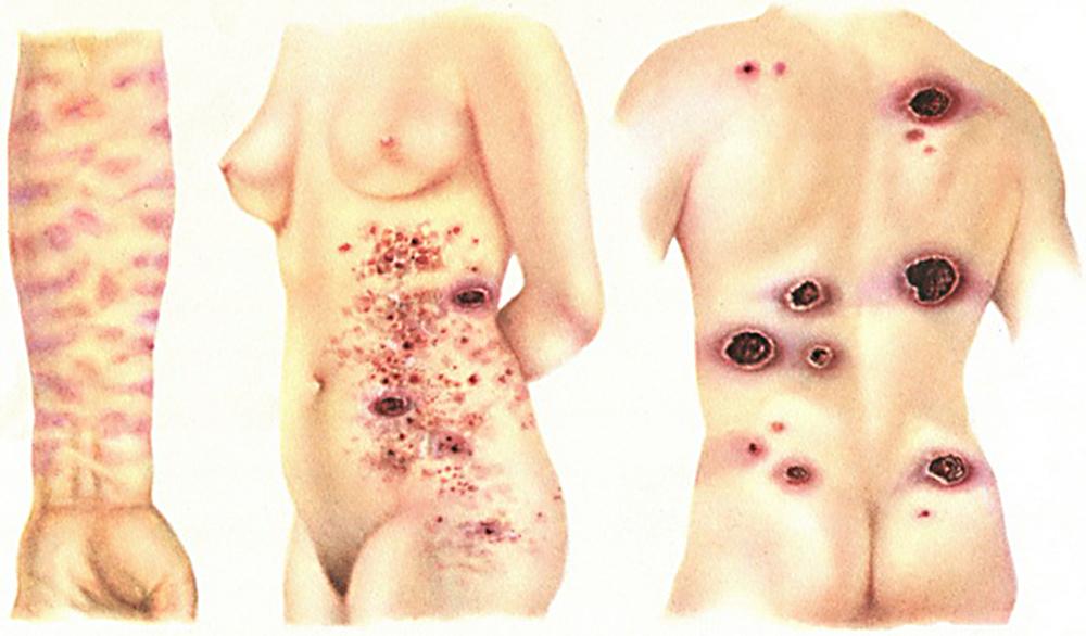 кожные патологии при ВИЧ
