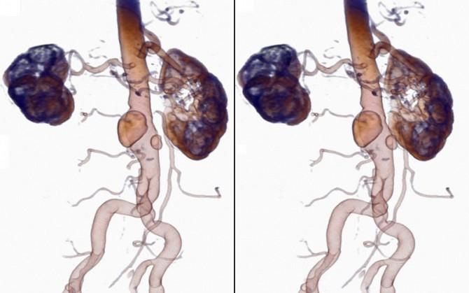 Диагностика опухли брюшной полости
