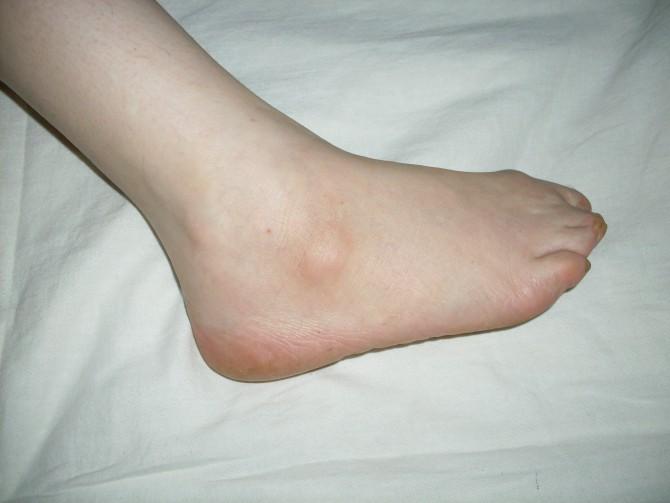 Опухль на ноге