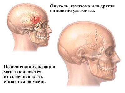Лечение опухли головного мозга