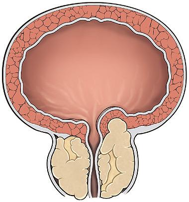 Послеоперационный период рака предстательной железы