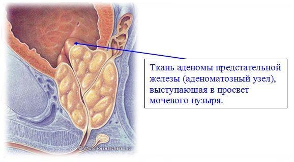 Рак предстательной железы после облучения