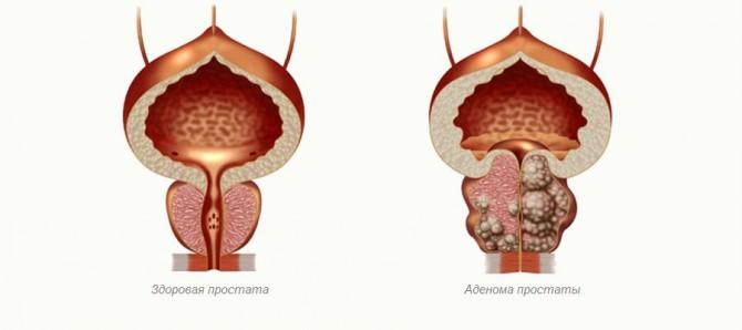 Препараты после операции на аденомы простаты