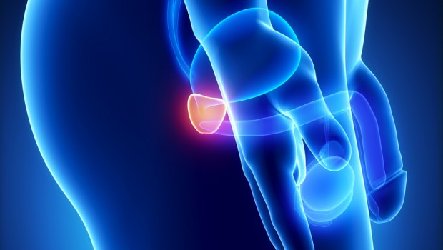 Лечение простатита с аденомой