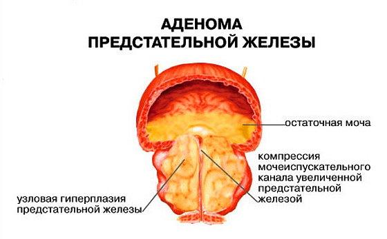 Лечение аденомы простаты содой