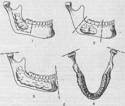 Амелобластома тела и ветви нижней челюсти