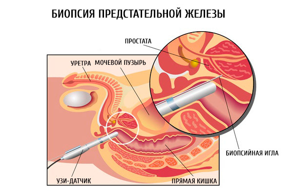 Симптомы острого простатита у мужчин в домашних условиях