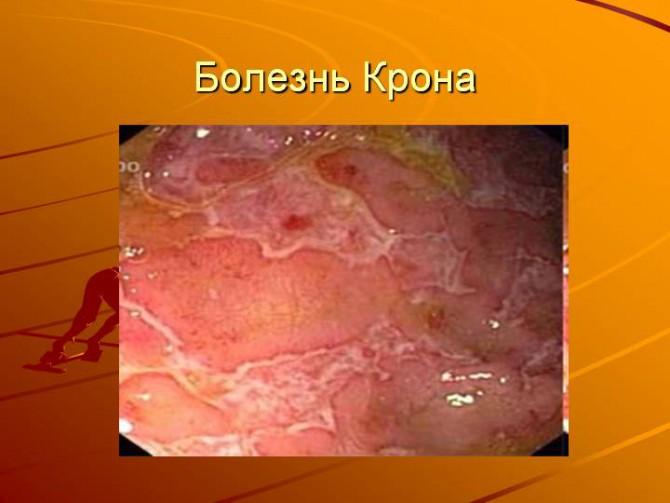 Отдел ректосигмовидный ободочной кишки