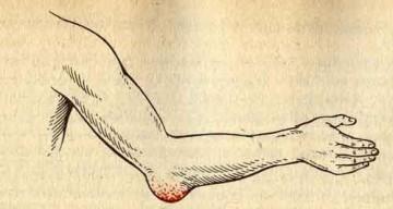 Опухоль локтя