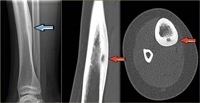 Доброкачественная опухоль голени-остеома