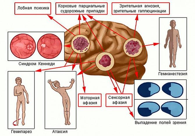 Головной мозг - симптомы опухолей
