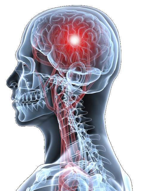 Головная боль ломит кости болит горло