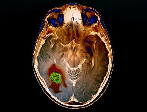 Головные боли при опухолях головного мозга
