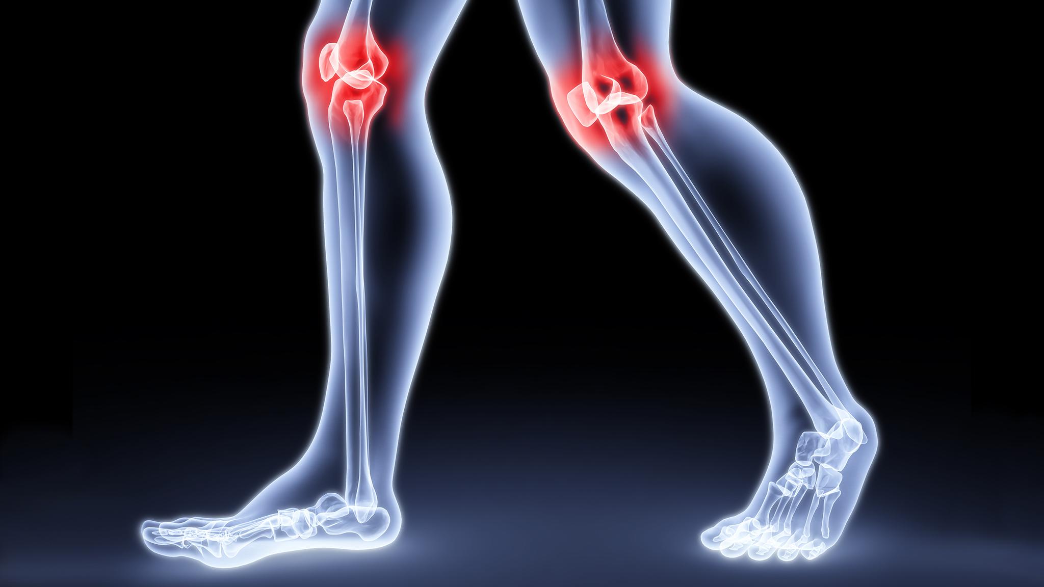 Остеома внутреннего мешочка голени около коленного сустава анатомия локтевой сустав