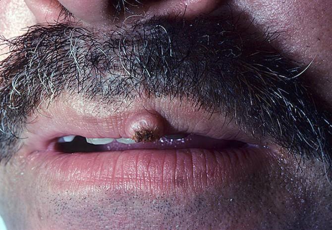 Опухоль губы