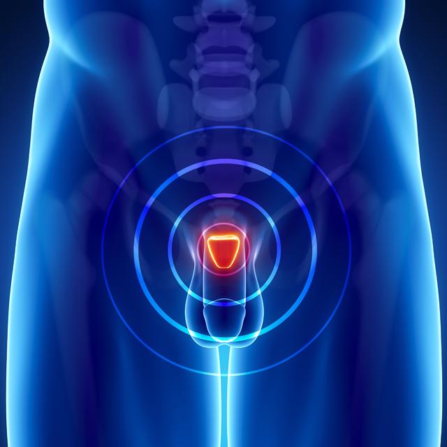 лечение простатита и аденомы простаты магнитом