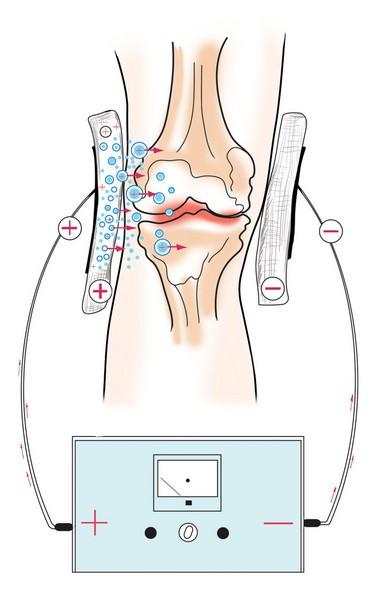 Лечение поражение суставов електрофорезом