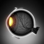 Опухоль глаза